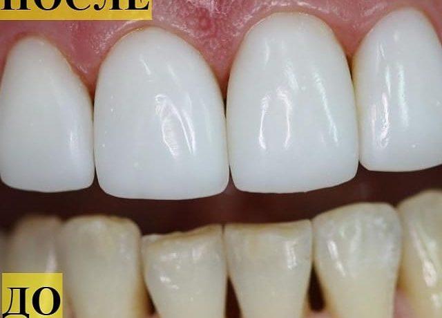 Здоровая эмаль – здоровые зубы!